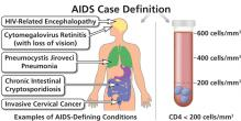 Conditions that lead to an AIDS diagnosis