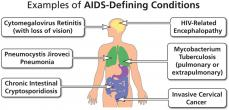 Examples of pportunistic infections that lead to an AIDS diagnosis