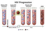 Progression of HIV infection to AIDS illustrated with test tubes, CD4 cells, and virions.